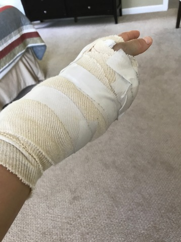Surgical hand